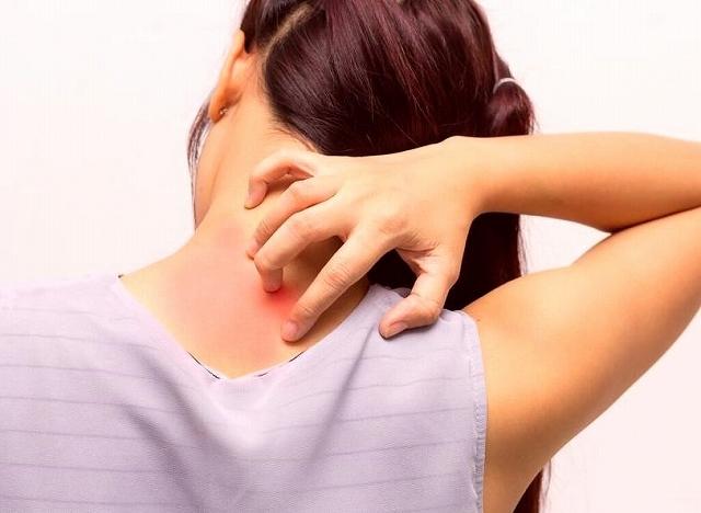 これってダニ刺され?【写真あり】ダニに噛まれた跡の特徴と症状